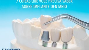 7 coisas que você precisa saber sobre implante dentário