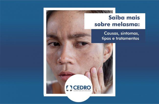 Saiba mais sobre melasma: causas, sintomas, tipos e tratamentos