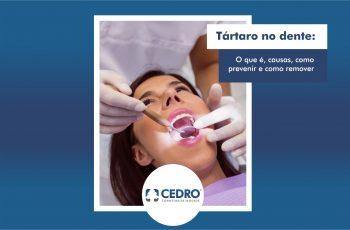 Tártaro no dente: o que é, causas, como prevenir e como remover