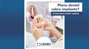 Plano de saúde dental cobre implante? A Corretora Cedro explica