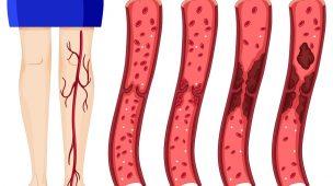 Tratamento de trombose pelo plano de saúde: saiba como funciona!