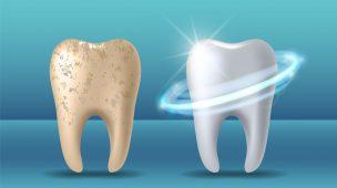 Clareamento dental pelo plano odonto? Descubra como funciona!