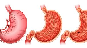Convênio cobre redução de estômago