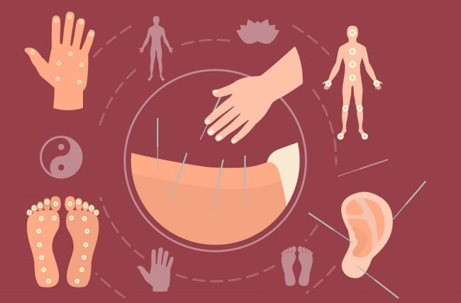 Microagulhamento: conheça os benefícios e os riscos do procedimento